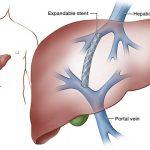 liver stent