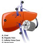 liver implant