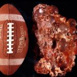 polycystic_liver_disease