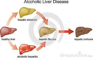 alcoholic cirrhosis